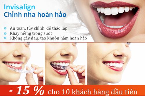 Khuyễn mãi niềng răng không mắc cài