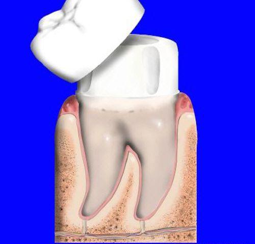 Sau bao lâu phải làm lại chụp răng
