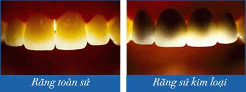 So sánh răng sứ kim loại và không kim loại