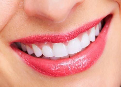 So sánh răng sứ titan với sứ E.max