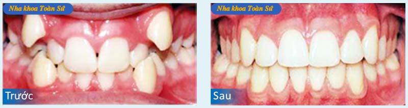 Hình trước và sau khin niềng răng invisalign