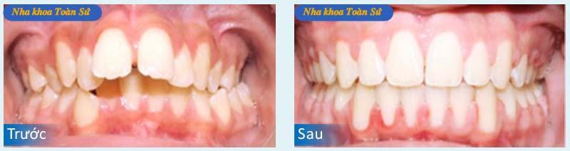 Hình trước và sau khi niềng răng