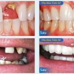 Hình trước và sau làm răng sứ Cercon