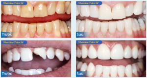 Hình răng sứ không kim loại
