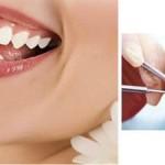 Răng sứ không kim loại