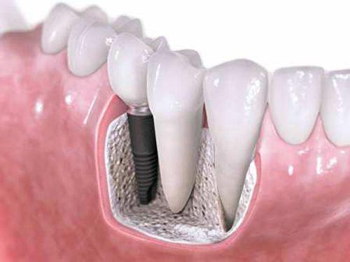 Cấy ghép implant tồn tại trong bao lâu