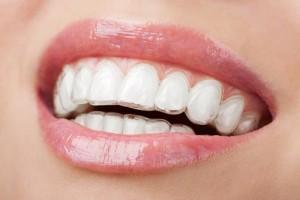 Niềng răng móm như thế nào