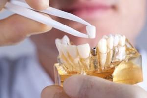 Tỉ lệ thành công của cấy ghép implant
