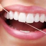 Trong trường hợp nào nên dán mặt răng sứ veneer