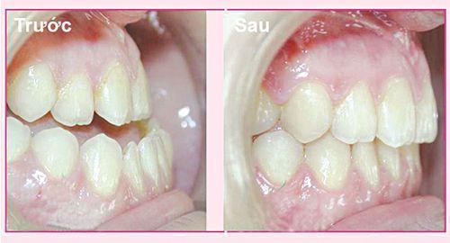 Niềng răng giá rẻ nhất ở đâu ?