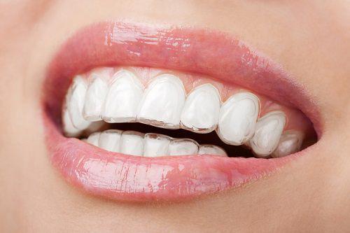 Niềng răng không mắc cài Invisalign giá bao nhiêu tiền ?