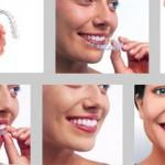 Niềng răng trong suốt ở đâu tốt nhất ?
