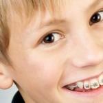 Niềng răng và những câu hỏi thường gặp
