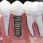 Làm răng Implant hay cầu răng giả?