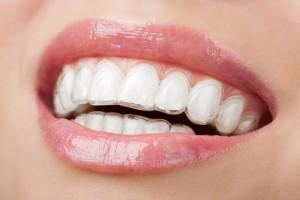 Niềng răng có hết hô không?