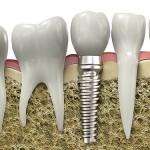 Trường hợp không đủ điều kiện để cấy ghép Implant