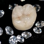 Bọc răng sứ Titan giá bao nhiêu tiền?