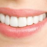 Cách bảo bảo và giữ gìn răng sứ lâu bền nhất