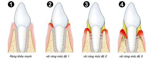 Khi răng bọc sứ bị lung lay phải làm sao?