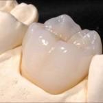 Răng sứ bị mẻ vỡ phải làm sao?
