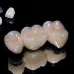 Răng sứ Titan cao cấp
