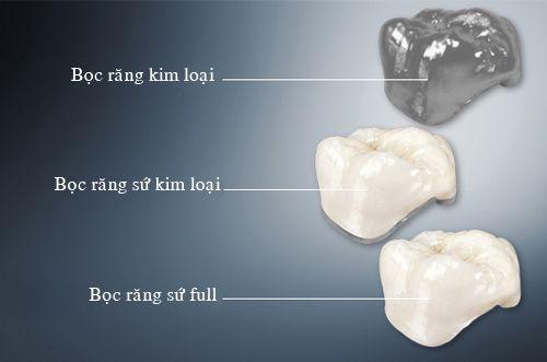 Răng sứ và những điều cần lưu ý