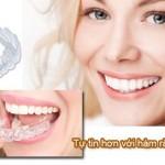 Tẩy trắng răng tại nhà hiệu quả với máng tẩy