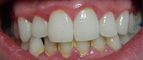 Cạo vôi răng có chảy máu không?