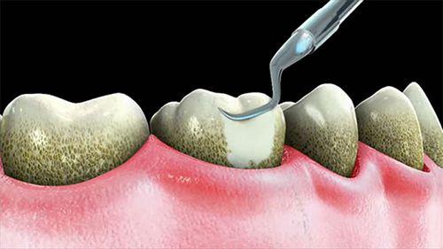 Lợi ích của việc lấy cao răng định kỳ